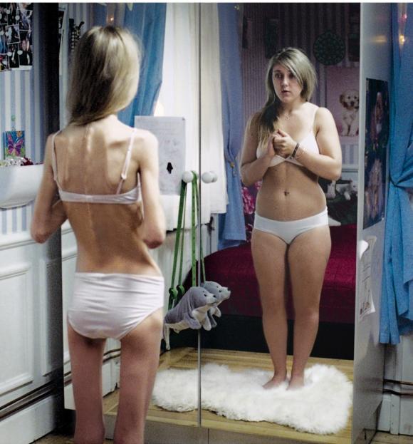 Traitement des troubles de l'alimentation des adolescents